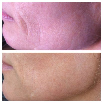 Before and after mouth on Nerium