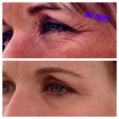 Pure and Bright Skin results on Nerium