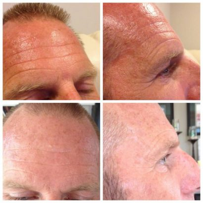 Another male on Nerium - Great results